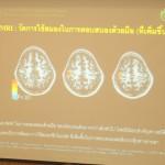 'มวยเด็ก' พุ่ง 3 แสนพบทั่วประเทศ นักวิจัยรามาฯ ชี้เสี่ยงสมองเสื่อม ไอคิวต่ำ